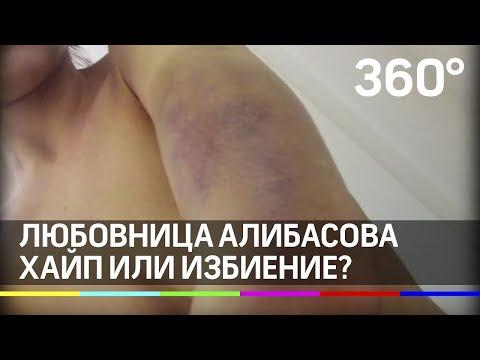 """""""Он меня бил ногами!"""": беременная любовница Алибасова показала травмы после нападения его сына"""